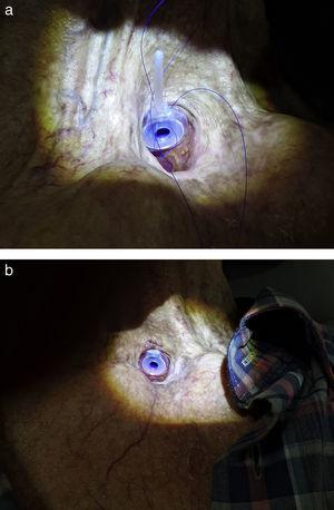 (a) The rings engaged with the tracheal and esophageal flanges of the voice prosthesis. (b) He upper side of the tracheal flange of the voice prosthesis was sutured to skin on the tracheostoma using 3.0 non-absorbable sutures.