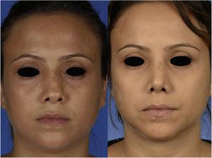 Frontal view of the patient, preoperatively (left) and 1 month postoperatively (right).