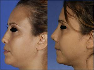 Lateral view of the patient, preoperatively (left) and 1 month postoperatively (right).