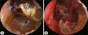Intraoperative endoscopic findings via Caldwell-Luc approach. (A) The polypoid mucosa (P) was detected in the inferior portion of left maxillary sinus. (B) After removal of polypoid mucosa, highly vascular mass (M) was originated from the medial and partial superior wall of left maxillary sinus.