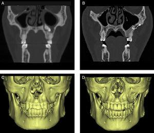 CT and 3D reconstruction images of bony wall reimplantation method. (A and C) Before operation. (B and D) Images post-operatively showing normal shape and no bone resorption.