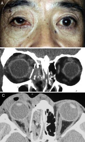 (A) The right eye after ophthalmic plastic and reconstructive surgery. (B) and (C) We constructed the inferomedial structures by inserting a preformed silicone plate on the orbital floor and medial wall.