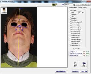 Preoperative basal facial analysis.