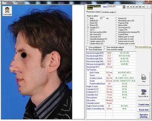 Postoperative lateral facial analysis (sixth month).
