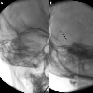 (A) Fluoroscopy after first insertion (tip rollover); (B) fluoroscopy after second insertion (correct placement).