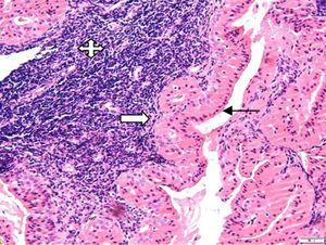 Histologic examination revealed papillary and cystic lesions comprised of epithelial and lymphoid cells (H&E stain, 200×). The epithelial component shows a double layer of granular eosinophilic/oncocytic cells: luminal non-ciliated columnar cells with nuclei aligned toward the lumen (black arrow) and basal round or polygonal basal cells having vesicular nuclei (white arrow). The lymphoid component was composed of mature small lymphocytes (quad arrow) (Image 7883, H&E stain, 200×).