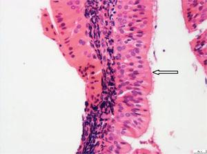 Nasopharyngeal lining columnar ciliated epithelium (white arrow) is not involved (H&E stain, 400×).