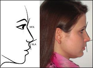 Lateral view: nasofrontal angle (NFA), nasolabial angle (NLA). Figure on the left: schematic model. Figure on the right: one of the volunteers in the study.