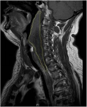 Sagittal magnetic resonance imagery revealed an abnormal irregular signal extending from the second cervical vertebra to the posterior mediastinum.
