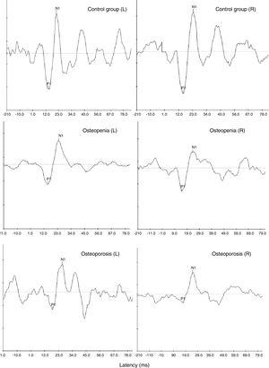 Representative cVEMP waveforms obtained from one participant with normal bone mineral density (top-most panel) and a participant each with osteopenia (middle panel) and osteoporosis (bottom-most panel).