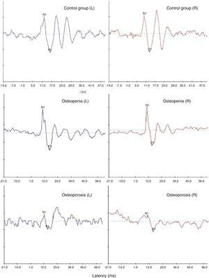 Representative oVEMP waveforms obtained from one participant with normal bone mineral density (top-most panel) and a participant each with osteopenia (middle panel) and osteoporosis (bottom-most panel).