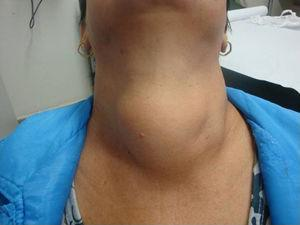 Large goiter in patients with hoarseness and respiratory distress.
