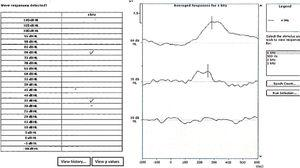 An example of automatic cortical auditory evoked potential threshold estimation to 4000Hz. In the example, the equipment considered response at 80 and 35dB HL. The black continuous line indicates the P1 latency considered by the three examiners.