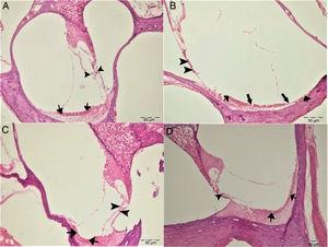 Histopathologic appearance of the cochlea, H&E, Bar: 50μm. (A) Control Group, normal histopathological structure of the cochlea (arrow, stria vaskularis; arrow head, outer hair cells). (B) Cisplatin Group, hyperemia (thinner arrows), degeneration and erosion (thicker arrows) in the stria vascularis, decrease in the number of outer hair cells (arrow heads). (C) Gallic Acid Group, normal histopathological structure of the cochlea (arrow, stria vaskularis; arrow head, outer hair cells). (D) Cisplatin+Gallic Acid Group, mild hyperemia in the stria vaskularis (arrows), normal histopathological structure of outer hair cells with mild decrease in the number of these cells (arrow head).