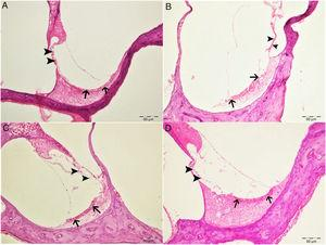 Histopathologic appearance of the cochlea, H&E, bar: 50μm. (A) Control group. Normal histopathological structure of the cochlea (arrow, stria vaskularis; arrow head, outer hair cells). (B) Cisplatin group. Hyperemia, degeneration and erosion in the stria vascularis (arrows), severe decrease in the number of outer hair cells (arrow heads). (C) Eugenol group. Normal histopathological structure of the cochlea (arrow, stria vaskularis; arrow head, outer hair cells). (D) Cisplatin+eugenol group: mild hyperemia in the stria vaskularis (arrows), normal histopathological structure of outer hair cells with mild decrease in the number of these cells (arrow head).