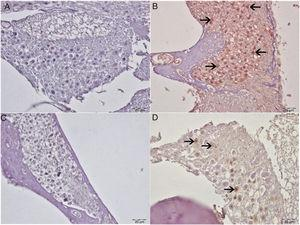 Immunohistochemical examination of the cochlea, IP, bar: 50μm. (A) Control Group. Negative 8-OHdG expression in spiral ganglia. (B) Cisplatin group. Severe 8-OHdG immunopositivity in spiral ganglia (arrow). (C) Eugenol group: negative 8-OHdG expression in spiral ganglia. (D) Cisplatin+eugenol group: mild 8-OHdG immunopositivity in spiral ganglia (arrow).