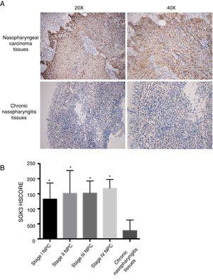 Representative immunohistochemical staining of SGK3 in NPC tissues. (A) Immunohistochemical results showed that SGK3 protein expression was mainly located in the cytoplasm, with strongly positive SGK3 expression in NPC cancer nests and no expression or weak expression in chronic nasopharyngitis tissues. (B) SGK3 expression rate in different stages of NPC and chronic nasopharyngitis tissues according to the HSCORE. The SGK3 expression in stage I, II, III and IV NPC tissues was significantly higher than that in chronic nasopharyngitis tissues (p<0.01). However, no significant difference was observed among the different NPC stages (p>0.05).