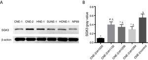 Detection of SGK3 protein expression in NPC cell lines. (A) Representative SGK3 protein expression in different NPC cell lines and NP69 cells detected by western blot analysis. (B) Analysis of the gray value of SGK3 protein expression as the ratio of SGK3 to β-actin in the western blot results; SGK3 was more highly expressed in most NPC cell lines (CNE-2, HNE-1, SUNE-1) than in NP69 cells (p<0.01).