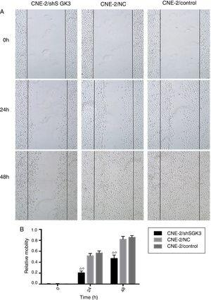 The effect of SGK3 downregulation on the motility of CNE-2 cells. (A) Distance at different times after the scratch test (original magnification: ×5). Scratch distances in the shSGK3 group did not obviously change after 24h, whereas cells in the NC and control groups exhibited higher migration rates (p<0.01). After 48h, cells in the shSGK3 group had not yet recovered from the damage (p<0.01), but cell scratches in the NC and control groups were hardly visible. (B) Comparison of the cell migration rates at different times by the scratch test; the cell migration rates in the shSGK3 group were higher than those the NC and control groups after 24 and 48h (△◊ p<0.01).