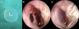 Septal button (a), septal perforation (b), patient with septal button (c). White arrows, inferior concha; black arrow, septal perforation.