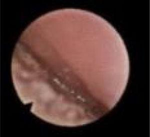 Fiberoptic view of transoral DISE showing the oral tongue pushing the palate (positive tongue palate interaction).