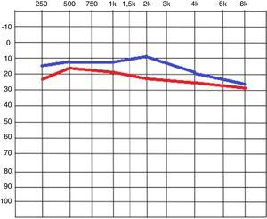 Tonal audiometry image, comparing the means of the initial values in red, and after the film placement, in blue.