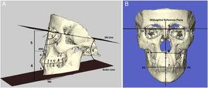 A) Lateral cephalometric measurements: (1) SNA (°): the postero-inferior angle between anterior cranial base and nasion-point A line; (2) SNB (°): the postero-inferior angle between anterior cranial base and nasion-point B line; (3) ANB (°): the angle between nasion-point A and nasion-point B lines; (4) ANS-Me (mm): anterior lower facial height; (5) N-ANS (mm): anterior upper facial height; (6) GoGn/SN (°), the angle between anterior cranial base and the mandibular plane; (B) Posteroanterior measurements: (7) GA-MSR (mm): linear distance between antegonial notch and midsagittal reference plane; (8) JL-MSR (mm): linear distance between the deepest point of the right alveolar maxillar process and midsagittal reference plane; (9) ZL-MSR (mm): linear distance between the most internal point of the frontozygomatic suture and midsagittal reference plane.