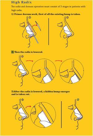Steps of procedure.