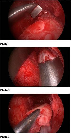 Per-op endoscopic view.