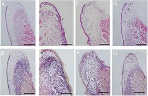 Histological examination. Sections were stained with Hematoxylin and Eosin (H&E), as well as Elastica van Gieson (EVG). Uninjured vocal folds were prepared as controls (A and B). The surface of the injured vocal folds is irregular with marked deformation covered by thick epithelium. Collagen fibers are diffusely distributed in the lamina propria (C and D). In the gelatin hydrogel microspheres injection without bFGF, the irregular elevation of mucosal surface with deformation was observed. The collagen density was slightly decreased relative to the injured vocal folds (E and F). Injection of gelatin hydrogel microspheres with bFGF recovered the normal structure of the vocal folds, which were composed of a flat surface and an orderly arranged collagen layer (G and H); (200μm scale bar) (A, C, E and G were stained with H&E, and B, D, F and H with EVG).