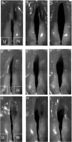 Vibratory examination of the excised larynges. Representative digital high-speed images demonstrated symmetric mucosal waves of non-injured vocal folds (A, B and C). All injured vocal folds shown on the left side revealed limited mucosal waves and vocal fold openings (D–I). The gelatin hydrogel microspheres without bFGF injected vocal folds seen on the right side demonstrated limited mucosal waves and vocal fold openings. The vibration and openings were better compared to injured vocal fold (D–F). The gelatin hydrogel microspheres with bFGF injected vocal fold on the right side revealed better vibration and vocal fold openings. The vibration and openings were still limited compared to the non-injured vocal fold (G–I). Rt and Lt indicate right side and left side, respectively.
