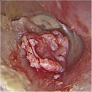 Intraoperative otoendoscopy: cartilage graft with a groove inserted in the perforation and perichondrium facing the external acoustic meatus.