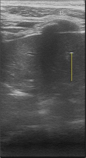 False positive malignant nodules by ultrasound. 53 years woman with non-malignant thyroid tumor diagnosed by tumor histological data. Transverse ultrasound image of the right thyroid lobe. Arrow indicates diffuse parenchymatous disease.