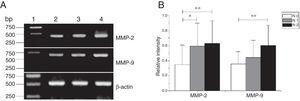 The mRNA expression of MMP-2 and MMP-9 in tumor tissues of different N stages obtained from hypopharyngeal carcinoma patients. (A) Representative mRNA expression of MMP-2 and MMP-9 in tumor tissues of different N stages. Expression of MMP-2 and MMP-9 was enhanced with increasing N stage (lane 1, 1kb DNA ladder; lane 2, stage N0 patient; lane 3, stage N1 patient; lane 4, stage N2 patient); (B) Relative intensity of MMP-2 and MMP-9 mRNA expression in tumor tissues of different N stages. Lymphatic metastasis patients exhibited higher levels of MMP-2 and MMP-9 mRNA expression than stage N0 patients (*p<0.05 and **p<0.01).