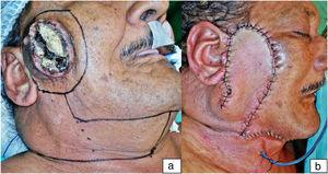 """Illustrative case. Case """"4″ from Table 1. In the first picture (a), a primary neglected cutaneous squamous cell carcinoma, deeply ulcerated by recent myiasis, and the surgical planning. In the second one (b), the immediate postoperative result."""