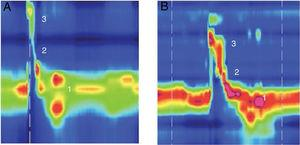 Example of high resolution manometry before and after Type I thyroplasty showing increase in peak pressure in the velopharynx area, in a patient with low vagal injury (vocal fold paralysis after thyroid surgery). (1) UES; (2) Epiglottis; (3) Velopharynx. A, Pre surgery; B, Pos surgery.