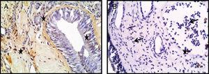 Photomicrographs of TUNEL staining within the turbinate tissue (A) and NPs (B) tissues is depicted. TUNEL-positive cells were seen as brown (star) (Arrow: Eosinophils) (A, B; original magnification ×400).