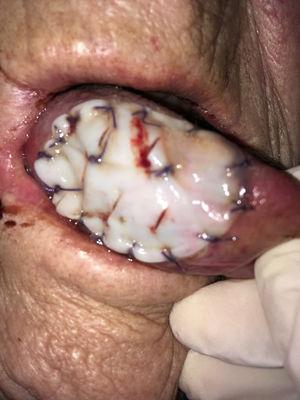 Tutopatch® is used to cover the surgical defect after resection of a pT1 of the right tongue. Absorbable stitches are used to fix the outer margins of Tutopatch® and two more absorbable stitches are placed to make the central part of the graft adhere to the underlying tissue and prevent graft lifting.