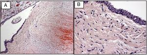 Hematoxylin-eosin stain showing histopathological features of dentigerous cyst. (A) Presence of cystic cavity with thin, stratified, squamous, epithelial lining (100× magnification); (B) interface between epithelial lining and smooth cystic capsule (400× magnification).