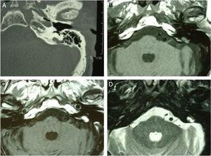 """High resolution CT scan of the temporal bone revealed a retrolabyrinthine bone erosion in the region of the left endolymphatic sac, with irregular margins and a """"moth-eaten pattern"""" (A). The mass had an isointense signal on MRI T1-weighted images (B), showed a marked contrast enhancement (C), a hyperintense heterogeneous signal on T2-WI (D)."""