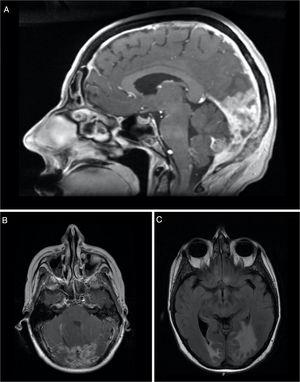 Sagital (A) and axial (B) contrast-enhanced T1-weighted MRI showing thickening and enhancement of the dura suggestive of pachymeningeal carcinomatosis (arrow). Axial (C) T2-FLAIR-weighted MRI showing vasogenic edema in the right occipital lobe and left occipito-temporal region.