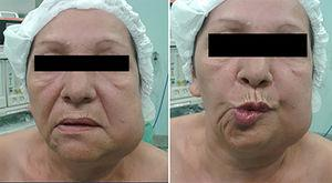 Clinical aspect at rest, evidencing facial asymmetry and paralysis of the marginal branch of VII cranial.