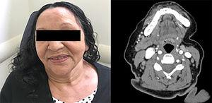 Absence of cervical tumorations 72 months after admission. CT scan maintained resolution of left submandibular gland tumor 75 months after remission.
