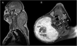 (A) Coronal T1-weighted Magnetic Resonance Imaging (MRI) showed the presence of a subcutaneous mass measuring 13×14×22cm in the posterior area of the neck which extended into the posterior thoracic wall. (B) Axial T1-weighted MRI showed significant enhancement of the mass and highlighted a central necrotic area.