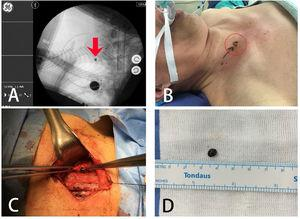 Surgical process: (A) foreign object is indicated by SAVN system; (B) foreign body is indicated by laser spot on body surface, which is a green shining spot emphasized by a red circle; (C) foreign body taken out from the carotid sheath; (D) the metal foreign object.