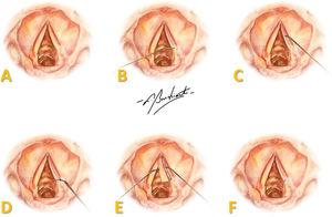 Representation of the surgical procedure in human vocal folds: (A) endoscopic view of VFs; (B) incision in the superior aspect of the full length of the VF; (C) mucosal detachment; (D) sectioning of the mucosa; (E) pedicled flap with FG on the vocal ligament; (F) repositioning of the flap over the vocal ligament. Art by Burchianti LC.