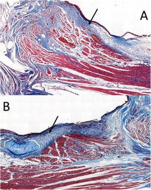 Masson trichrome-stained sections in rabbits at a magnification of 5×: (A) control VF; (B) VF with fibrin glue. Arrows point to the subepithelial region of the VFs. Note higher concentration of collagen in part B, in blue.