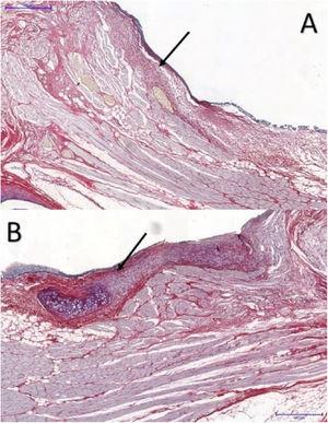 Picrosirius red-stained tissue sections at a magnification of 5×: (A) control VF; (B) VF with FG. Arrows point to the subepithelial region of the VFs. Note higher concentration of collagen in part B, in red.