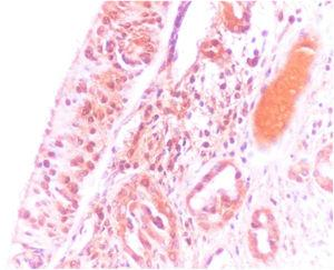 Very severe (+4) immunostaining of olfactory epithelium with the olfactory marker protein (OMP, ×400).