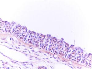 Severe (+3) immunostaining of concha bullosa surgical material with the olfactory marker protein (OMP, ×400).
